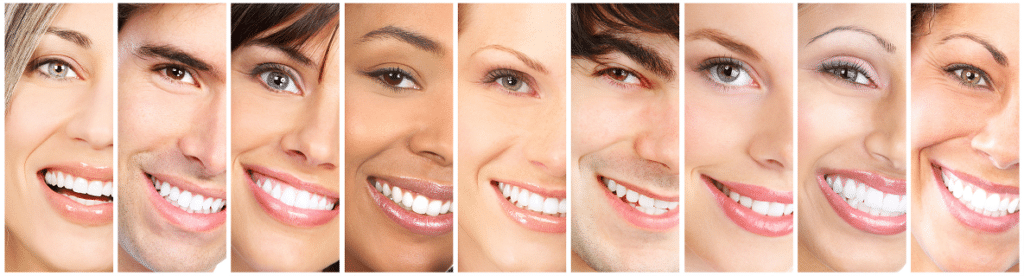 white-smile-los-angeles-dentist