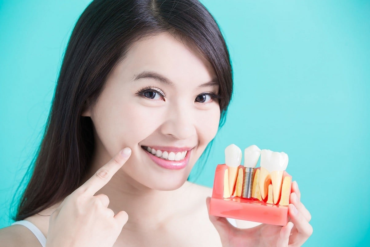 tooth implant - oral surgery los angeles