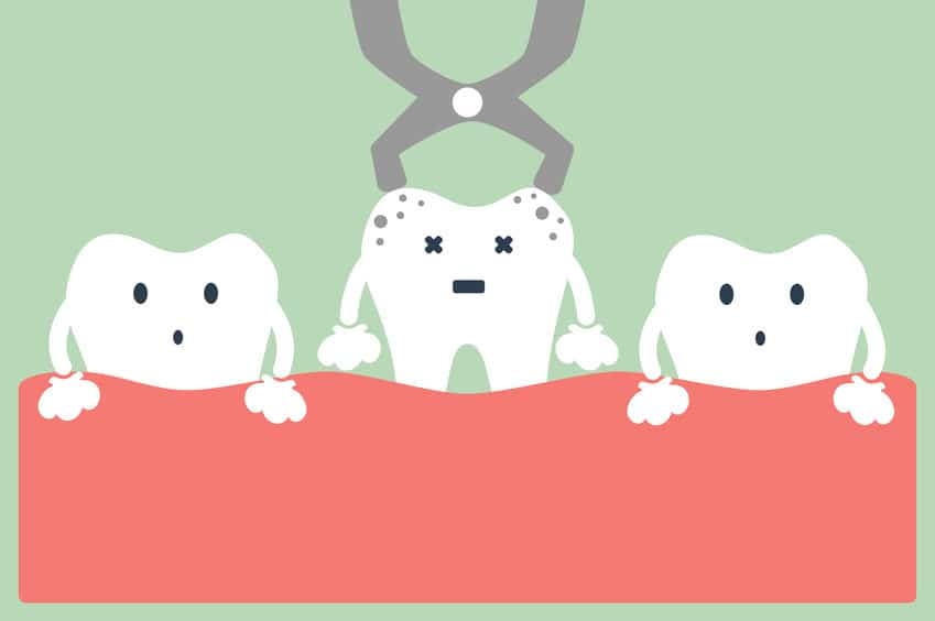 dental cartoon vector, tooth extraction by dental tools
